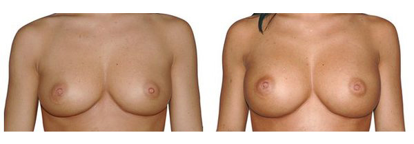 Brustvergrösserung