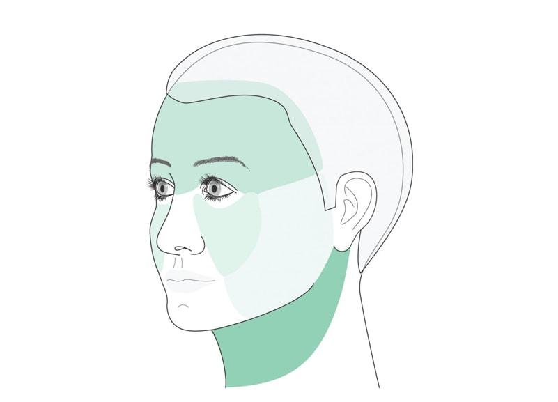Bei der Gesichtsstraffung wird eine Unterteilung des Gesichtes in vier Partien Stirn, Mittelgesicht, Hals und Wangen vorgenommen.