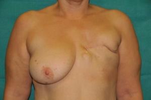 46 jährige Patientin mit Brustkrebs auf der linken Seite, bei der die linke Brust bereits entfernt worden ist und die sich eine Brustrekonstruktion wünschte.