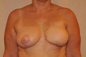 Zustand nach Straffung (Angleichung der rechten Brust an die rekonstruierte linke Seite) Dr. Turkof