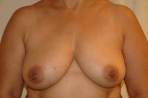38 jährige Patientin mit BK auf der rechten Seite. Geplant eine Rekonstruktion mit Eigengewebe.