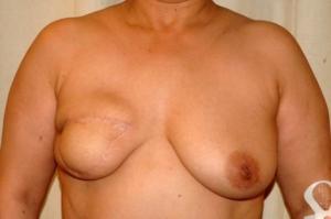 Zustand nach Entfernung der rechten Brust mir Sofortrekonstruktion mittels Eigengewebe vom Bauch (Mikrochirurgische Tramlappen) , 9 Monate nach dem Eingriff Dr. Turkof
