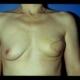 Zustand nach Entfernung der linken Brust mir Sofortrekonstruktion mittels Eigengewebe vom Rücken ( Latissimus Dorsi) , 2 Monate nach dem Eingriff. Dr. Turkof