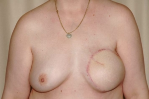 Zustand nach Entfernung der linken Brust mir Sofortrekonstruktion mittels Eigengewebe vom Bauch (Mikrochirurgische Tramlappen) , 3 Monate nach dem Eingriff