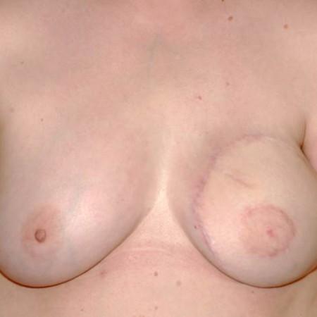 Angleichung der –gesunden-rechten Brust an die rekonstruierte linke Seite durch einbringung eines kleinen 110 g Implantates.