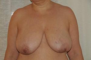 42 jährige Patientin mit BK auf der linken Seite, sichtbar durch die kleine Einbuchtung. Dr. Turkof