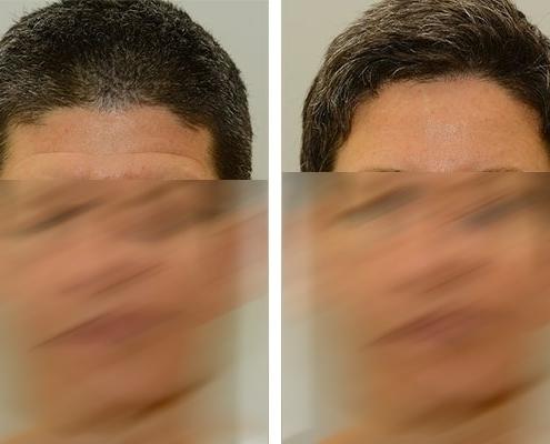 Vorher Nachher Beispiel eines Stirnliftings