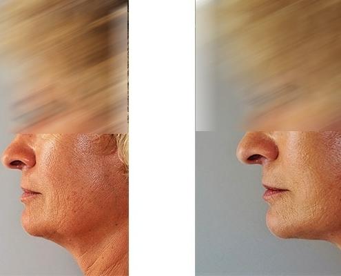 Beispiel einer Facelift Operation vorher und nachher