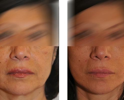 vorher nachher Beispiel einer Gesichtsstraffung im Mittelgesicht, Wangen und Hals