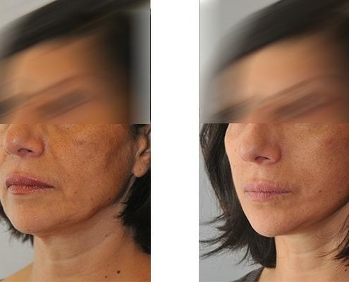 Beispiel einer Facelift Operation mit Straffung des Mittelgesicht, der Wangen und des Hals