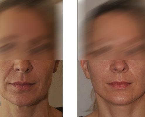 Beispiel eines Facelift vor und nach der Operation