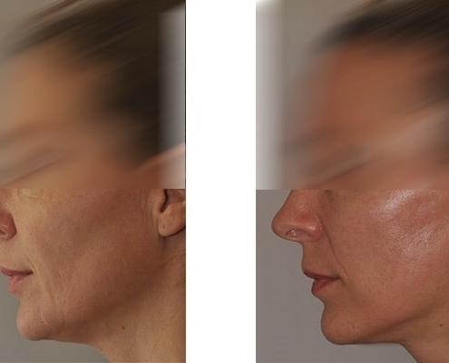 Beispiel einer Facelift Operation mit Mittelgesichts, Hals und Wangenlift