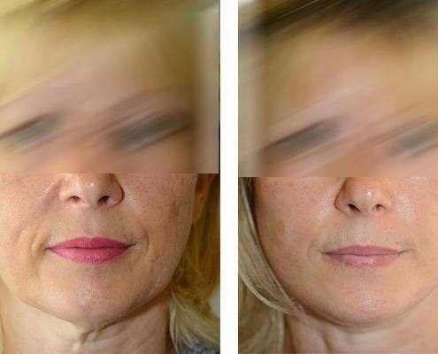 vor und nachher Beispiel einer Facelift Operation