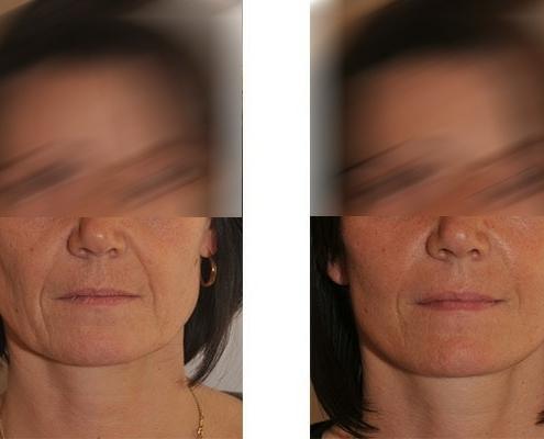 Beispiel einer Gesichtsstraffung vor und nach der Operation