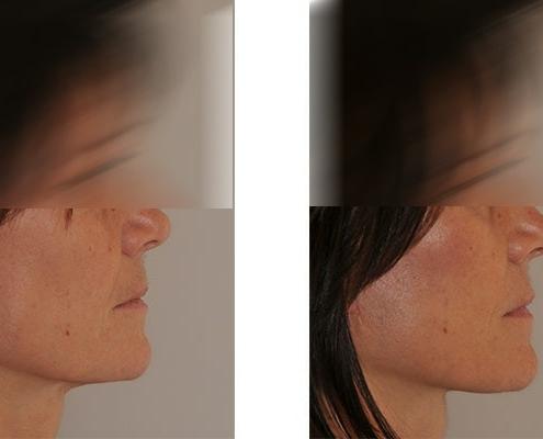 Beispiel einer Facelift vor und nach Operation