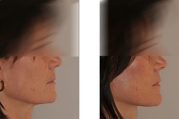 Beispiel einer Facelift Operation