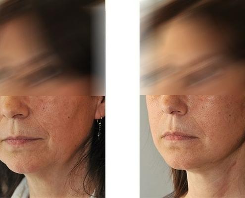 Vorher Nachher Ergebnis einer Gesichtsstraffung im Mittelgesicht, den Wangen und dem Hals.