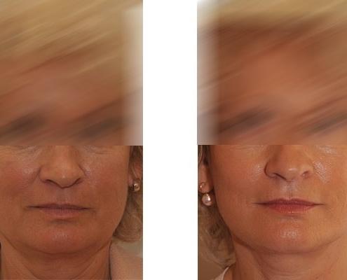 Beispiel eines Faceliftings im Mittelgesicht, den Wangen und dem Hals
