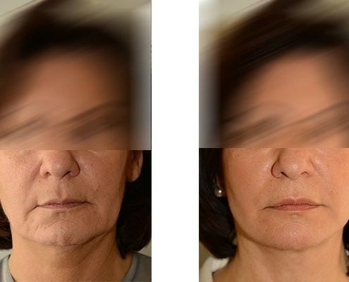 Beispiel eines Faceliftings vor und nach der Operation