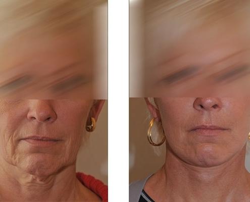 Beispiel vor und nach einer Facelift Operation