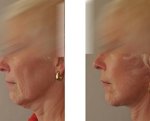 Vorher Nachher Beispiel einer Facelift Operation