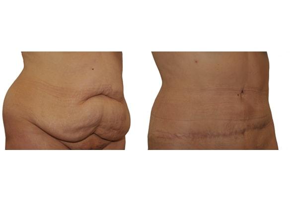 Bauchdeckenstraffung und Festtabsaugung Vorher Nacherbild