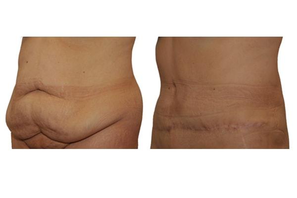 Bauchdeckenstraffung - Vorher - Nachher Bild 8 Monate nach Operation