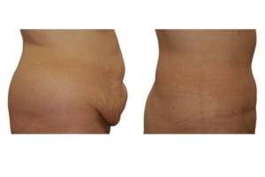 Bauchdeckenstraffung und Fettabsaugung