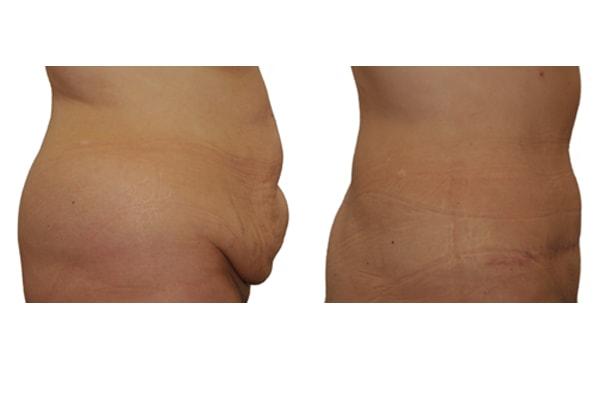 Vorher Nachher Bild einer Bauchdeckenstraffung und Fettabsaugung.