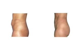 Bauchdeckenstraffung wegen massiver Rektusdiastase