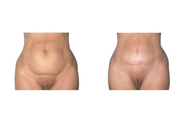 Bauchdeckenstraffung mit leicht abgeänderter Schnittführung