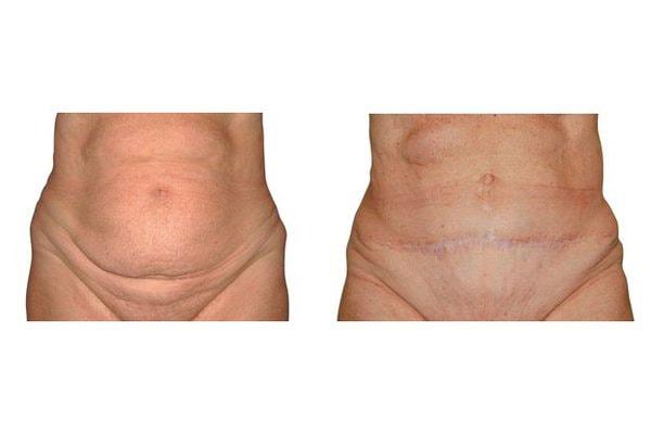 Bauchdeckenstraffung mit begleitender Liposuction