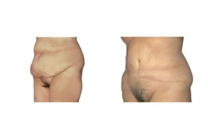 Bauchdeckenstraffung nach massiver Gewichtsabnahme