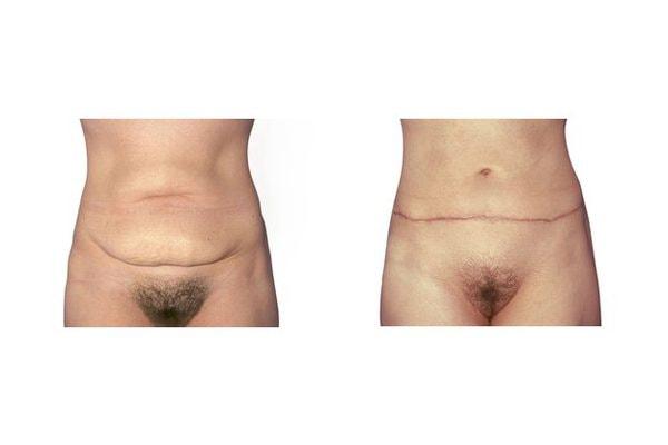 Bauchdeckenstraffung nach deutlicher Gewichtsabnahme