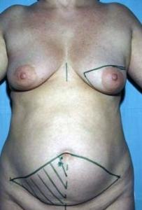 62 jährige Patientin am Tag der OP. Brustkrebs auf der linken Seite. Geplant ist die vollständige Entfernung der linken Brust und Sofortrekonstruktion vom Bauch ( Zeichnung) Dr. Turkof