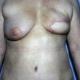 Zustand nach Entfernung der linken Brust mir Sofortrekonstruktion mittels Eigengewebe vom Bauch (Turbo Tram Lappen) Dr. Turkof