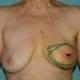 Aufgrund von Brustkrebs wird die linke Seite entfernt sowie sofort mittels Eigengewebe rekonstruiert.