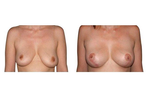 vorher nachher Ergebnis einer Bruststraffung