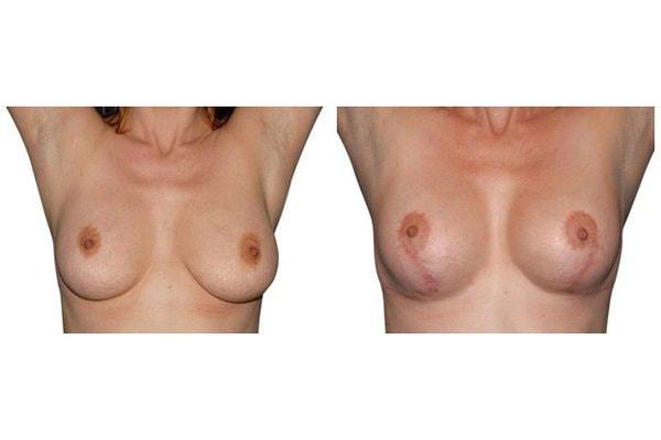 Ergebnis einer Bruststraffung