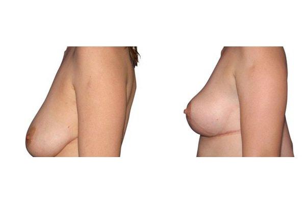 Vorher Nachher einer Bruststraffung