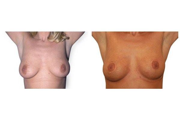 Vorher Nachher Bild einer Bruststraffung