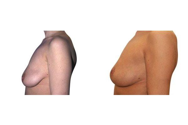 Seitenansicht einer Frau vor und nach der Bruststraffung