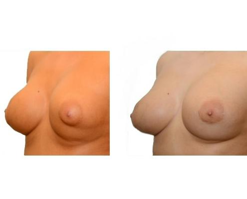 Brustvergrößerung mit Eigenfett 1