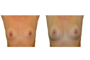 Brustvergrößerung mit Eigenfett 2