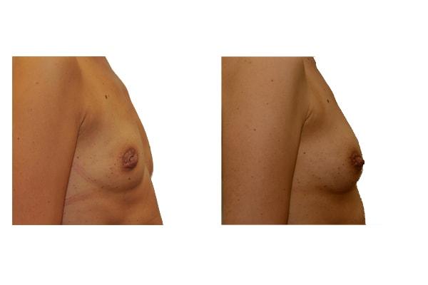 Vorher Nachher Fotos einer Brustvergrößerung mit Eigenfett