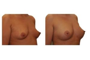 Brustvergrößerung mit Eigenfett 5
