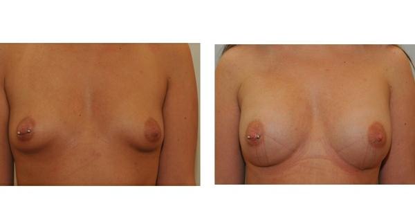 Brustvergrößerung mit Eigenfett 6