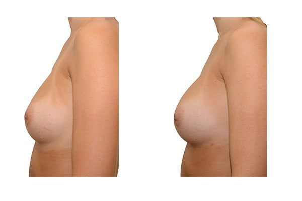 Ergebnis nach 3 Brustvergrößerungen mit Eigenfett und PRP Anreicherung