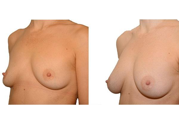 Ergebnis nach 4 Brustvergrößerungen mit Eigenfett und PRP Anreicherung