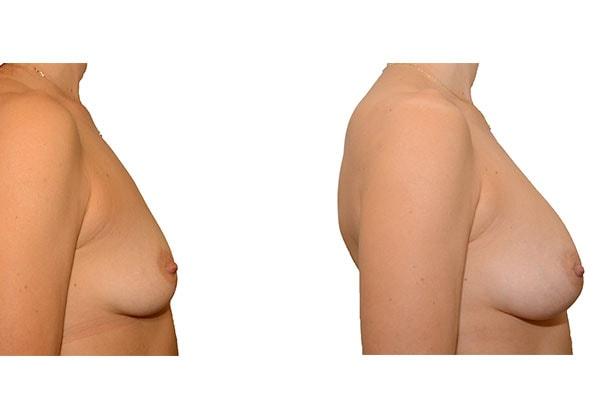 Nach Brustvergrößerungen mit Eigenfett und PRP Anreicherung